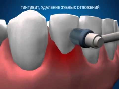 гингивит, лечение, гигиена полости рта