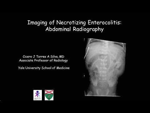 Necrotizing enterocolitis thumbnail