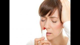 TRIBUN-VIDEO.COM - Mimisan atau epistaksis merupalan pendarahan dari bagian dalam hidung. Mimisan se.