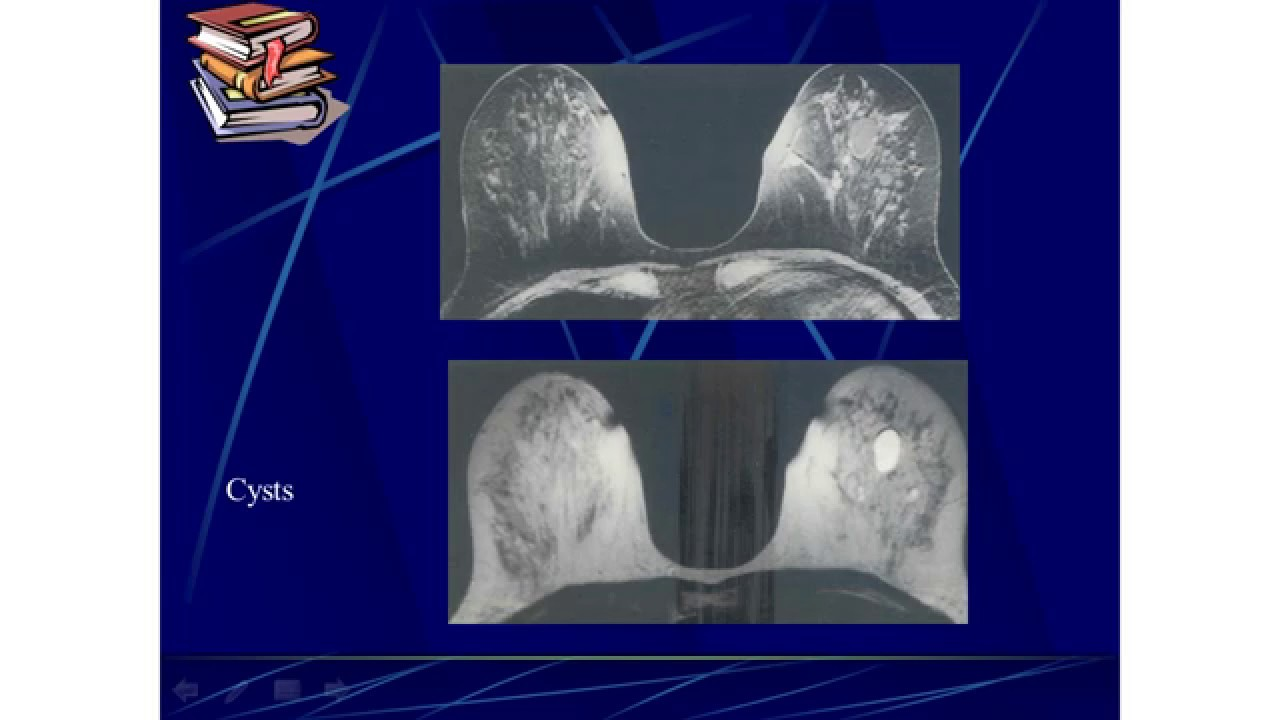 BREAST - Imaging and Radiology | Embryology Anatomy Investigations ...