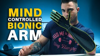 Mind-Controlled Bionic Arm w/iPhone App | How My Prosthetic Arm Works