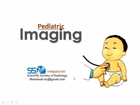 Imaging Of Skeletal Dysplasia - Prof Dr. Hassan El-Kiki (In Arabic)
