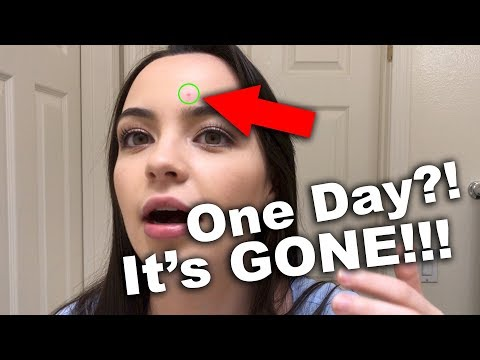 How I got rid of a PIMPLE in ONE DAY! (WARNING: kind of gross)