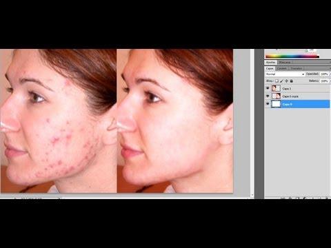 Adelgazar la cara en photoshop cs5