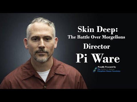 Pi Ware LIVE Interview
