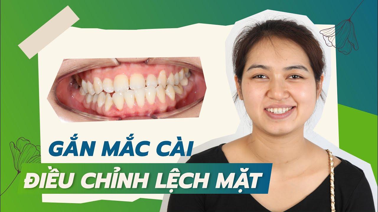 Niềng răng chữa lệch mặt và khớp cắn ngược như thế nào?