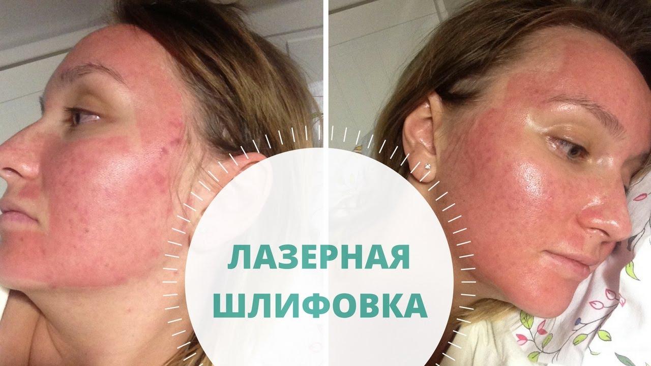 Как очистить лицо от прыщей и черных точек за неделю