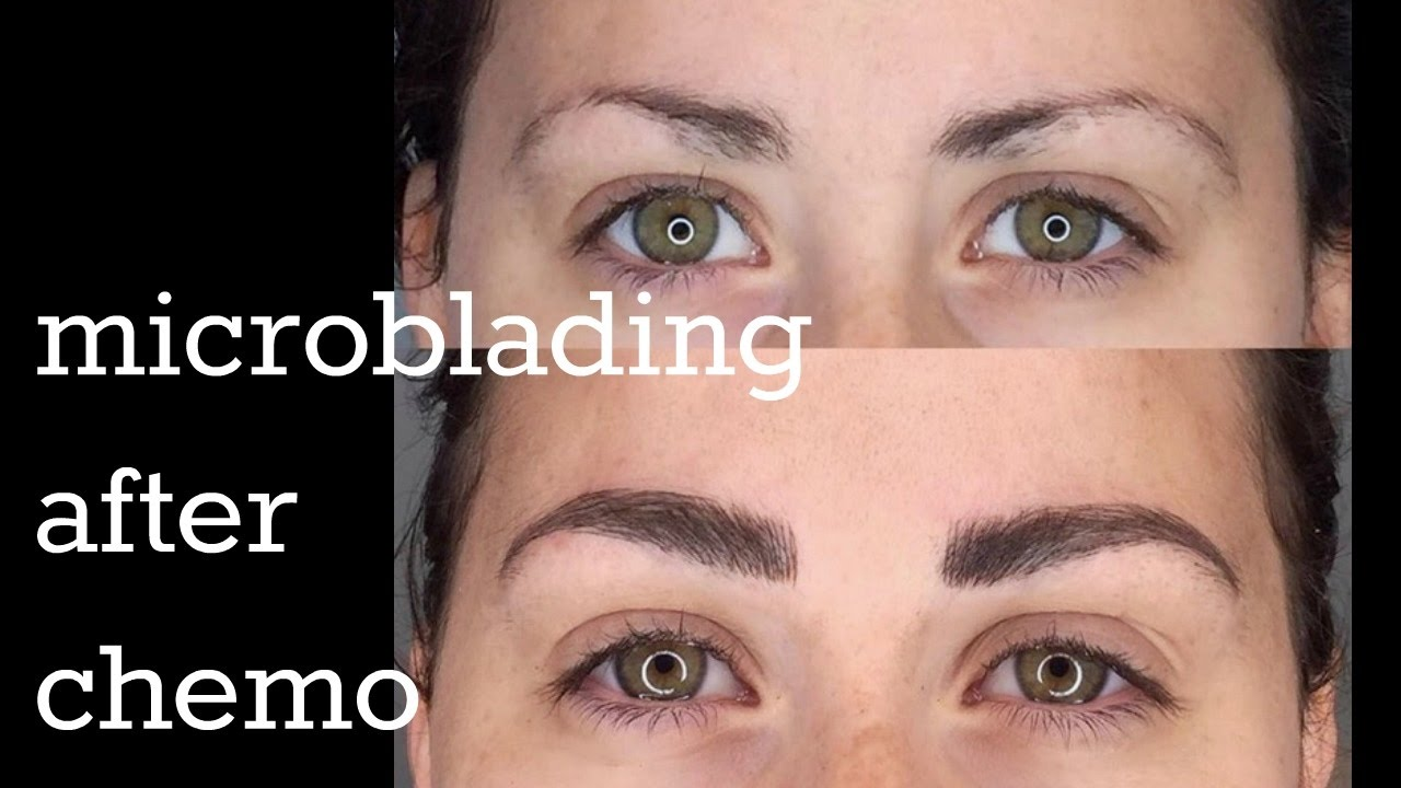 My Microblading Experience After Chemo Hair Loss Youtube