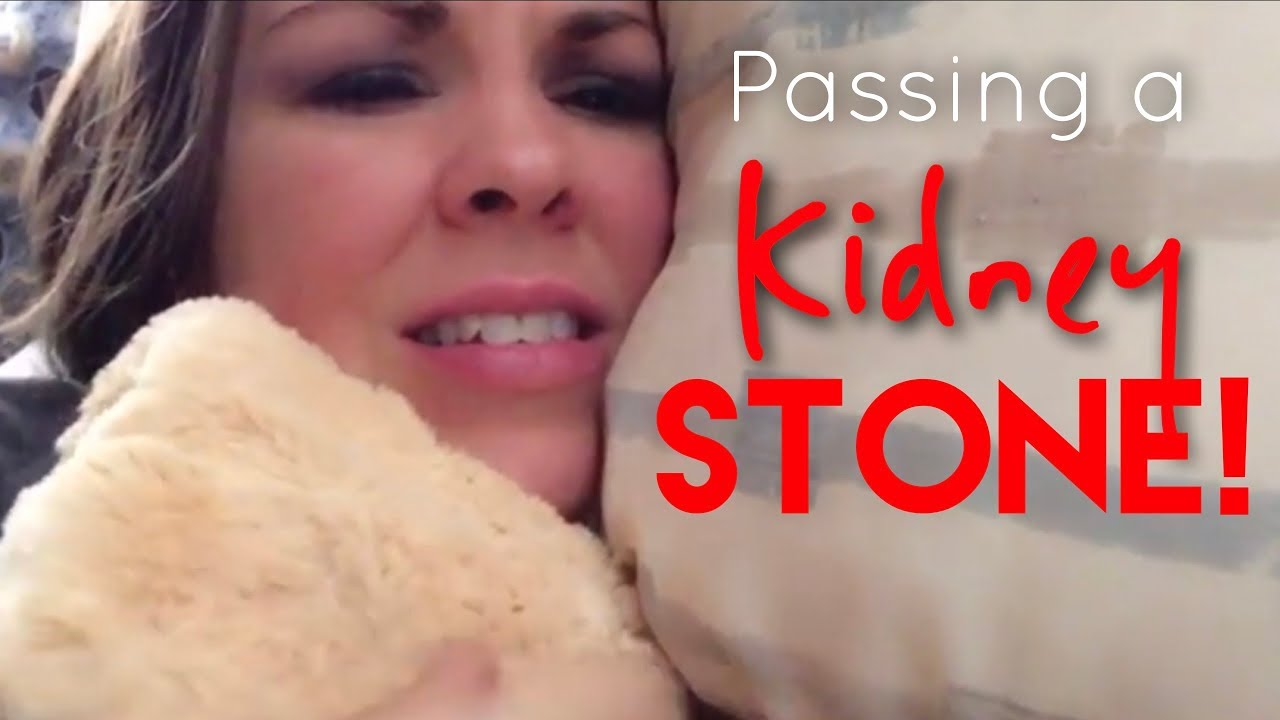 Passing A Kidney Stone Episode 36 Youtube