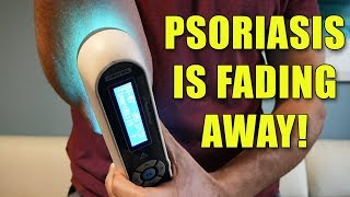Psoriasis UVB Light - 60 days in - The Results