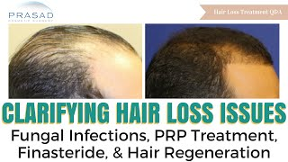 Hair Loss Issues - Fungal Infections, and Options When PRP and Finasteride Don't Work for You