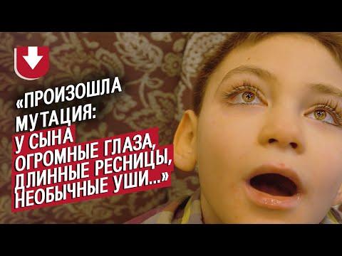 У моего сына синдром Кабуки: Лилия | Быть мамой - Видео онлайн