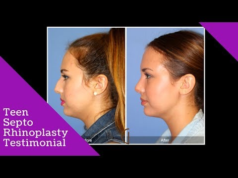 Teenage Rhinoplasty and Septoplasty | Nose Job Testimonial & Before and After