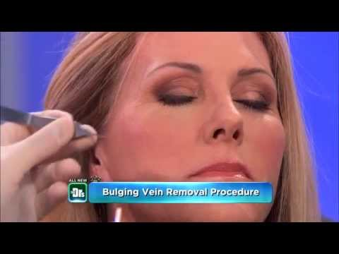 Removing Varicose Veins Under Eyes -- The Doctors - YouTube