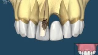 что лучше, мосты или имплантаты  Стоматология в Сумах