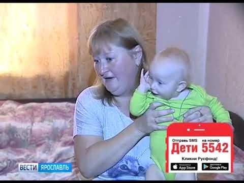 Аня Смирнова, 3 года, врожденная аномалия развития правой кисти