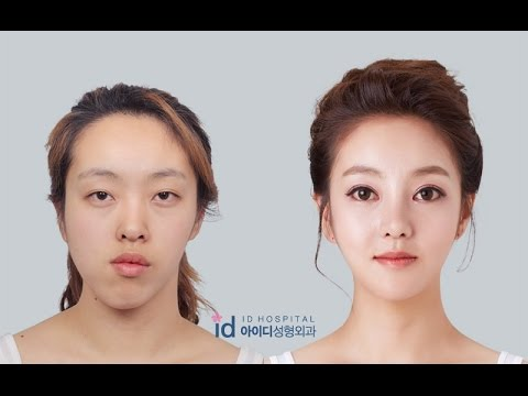 Double Jaw Surgery Asymmetrical Face, Korea Plastic Surgery  Let Me In TV Show,