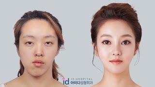 Double Jaw Surgery Asymmetrical Face, Korea Plastic Surgery  Let Me In TV Show,