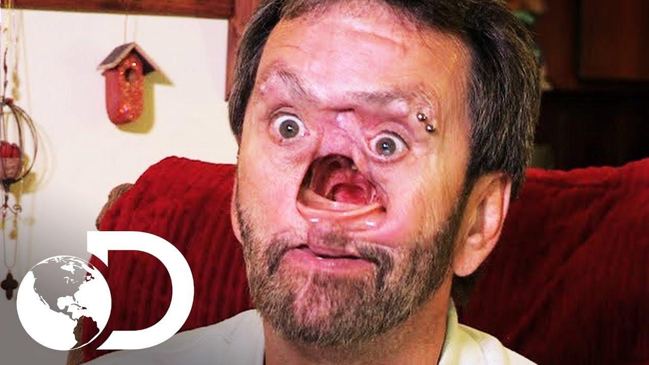 El Hombre con un hueco en el rostro | Mi Cuerpo, Mi Desafío l ...
