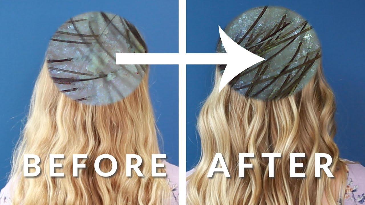 $10 DETOX SCALP TREATMENT for dry scalp & hair growth