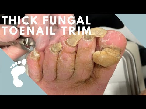 A Thick and Fungal Toenail!