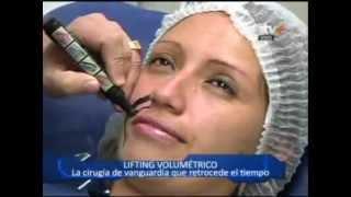 NUEVO REJUVENECIMIENTO FACIAL : LIFTING VOLUMETRICO - Doble Click- ATV+