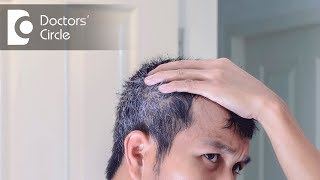 Can ceasing usage of minoxidil lead to any side effects? - Dr. Aruna Prasad