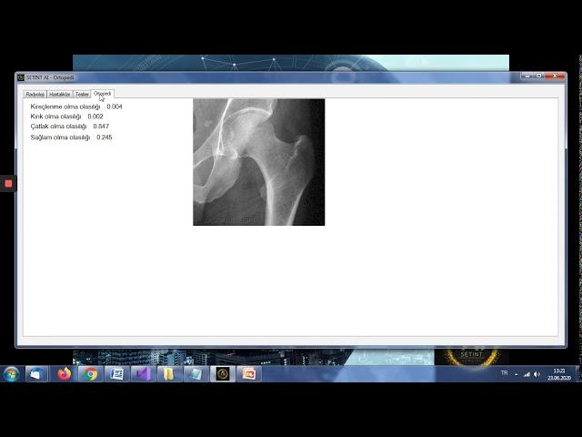 SETINT AI - IPS - Tele Radyoloji v.1.2