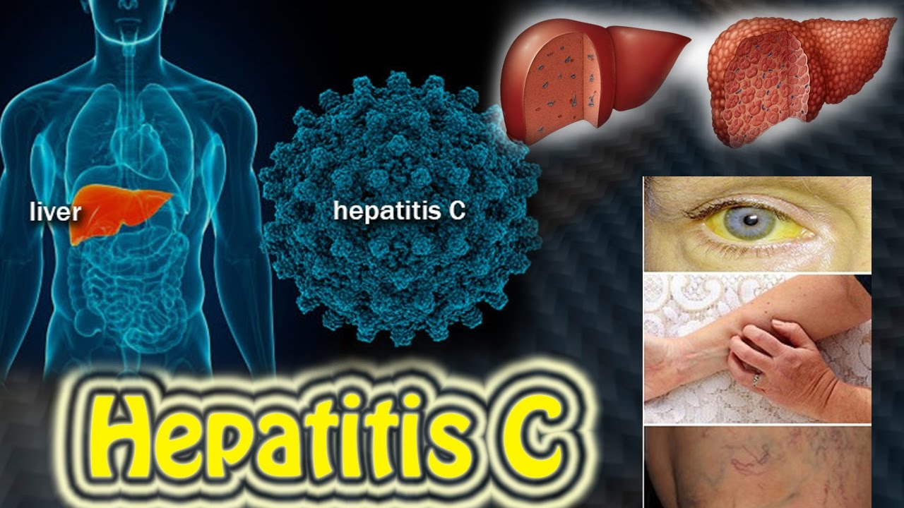 the causes diagnosis and treatment of hepatitis b