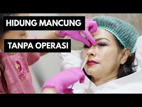 Suntik FILLER Hidung Before and After (Hasil Instant) OVELA CLINIC Jakarta Mp3