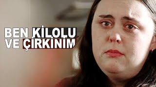 Ben Kilolu Ve Çirkinim !!