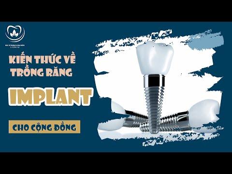 KIẾN THỨC VỀ TRỒNG RĂNG IMPLANT CHO CỘNG ĐỒNG   Bác sĩ Trung Long Biên