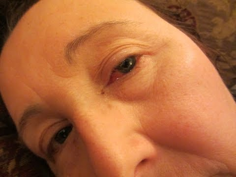 Retinal detachment surgery video diary - first two weeks