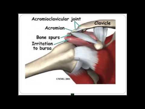 Повреждения вращательной ротаторной манжеты плечевого