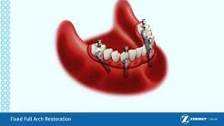 Affordable Dental Implants Temecula CA