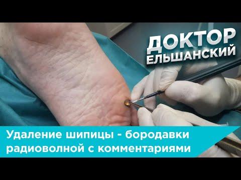 Удаление шипицы - бородавки радиоволной с комментариями врача