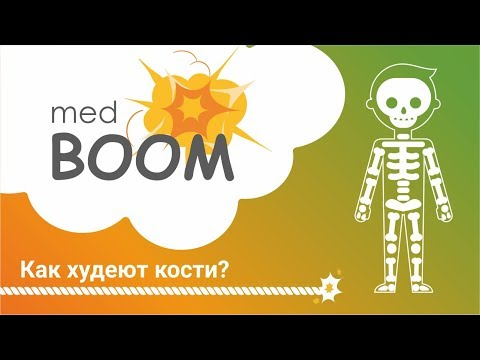 Остеопороз, витамин Д, кальций, лечение остеопороза/medBOOM