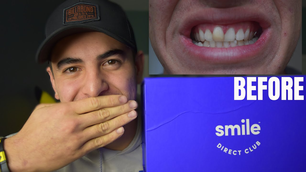 Smile Direct Club Costs Alternatives And Before And After