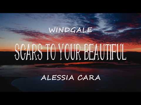 Alessia Cara Scars To Your Beautiful Lyric