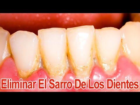 Como eliminar el sarro de los dientes de forma casera