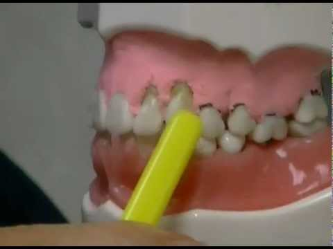 What Causes Gum Recession and How To Treat It