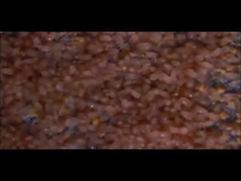Матрас под микроскопом! (пылевые клещи)
