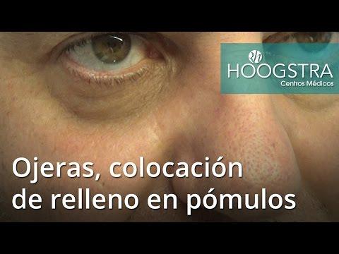Ojeras, colocación de relleno en pómulos (16116)