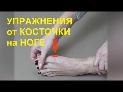 Лечение кости на большом пальце