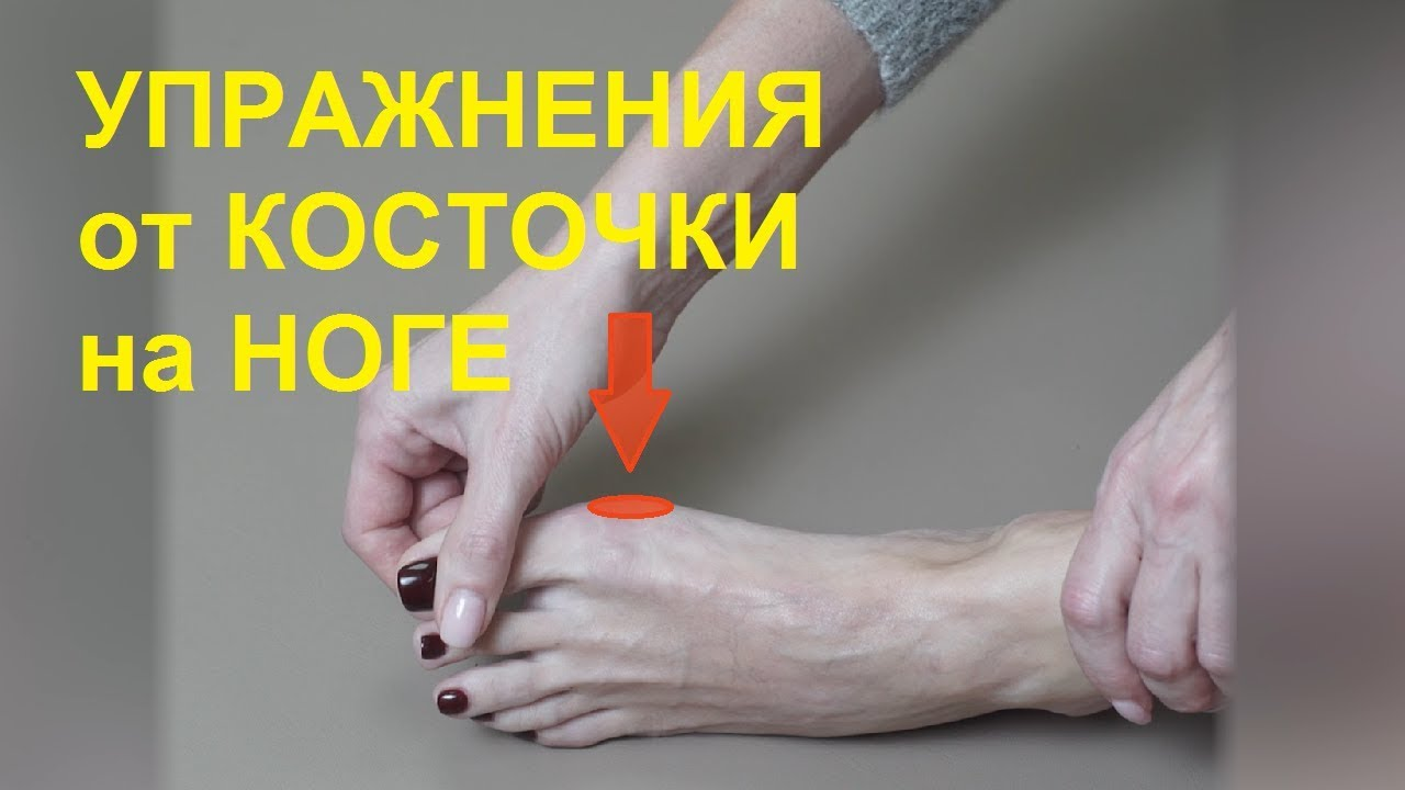 Лечебная гимнастика при заболевании суставов пальцев ног артрит коленного сустава ubvyfcnbrf