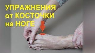 видео Как избавиться от шишки на большом пальце стопы