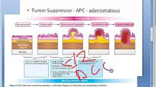 adenom carcinom)