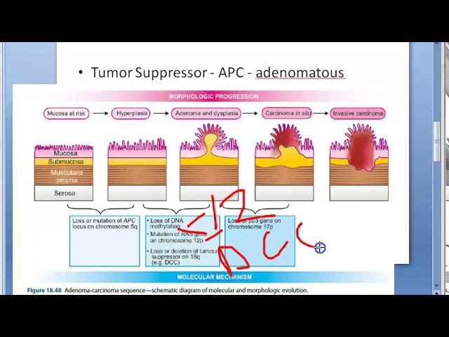 Pathology 521 H Adenocarcinoma Colon Sequence Colorectal Cancer Tumor Mutation Dcc Genetics Youtube