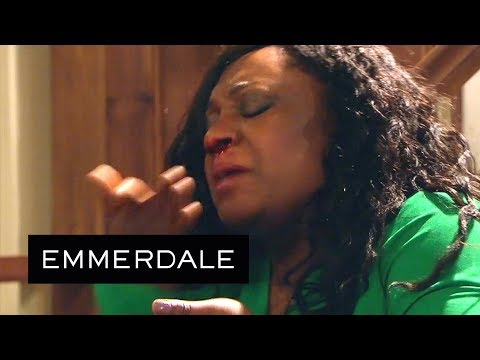 Emmerdale - Marlon Accidentally Hits Jessie in the Face!
