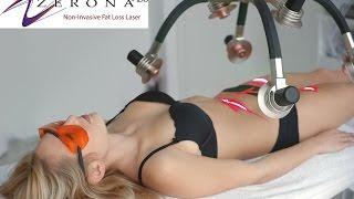 Zerona Fat Loss Laser at Healthy For Life